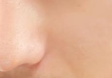 脂漏性皮膚炎を治す